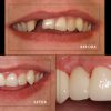 Cosmetic Dentistry Minnesota http://www.johnson-dental.com/
