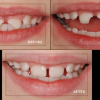 Dentists in Minnesota http://www.johnson-dental.com/